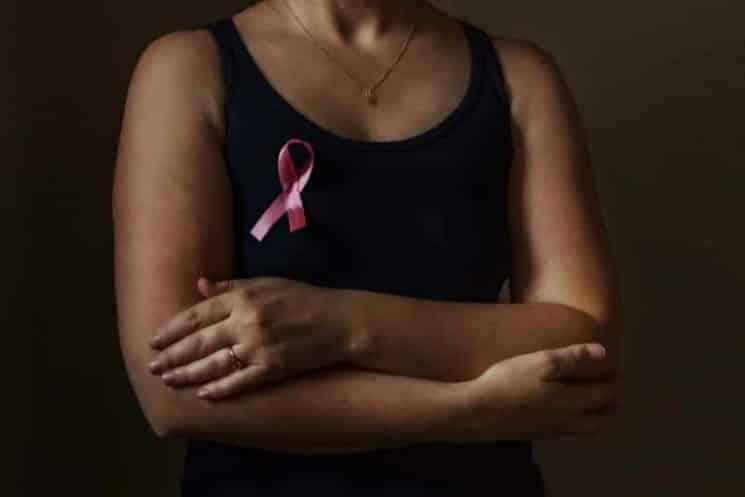 סרטן השד אישה טיפול